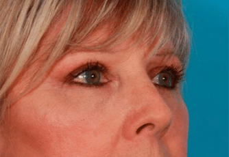 Eyelid Surgery Glasgow After
