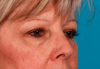 Eyelid Surgery Glasgow Before