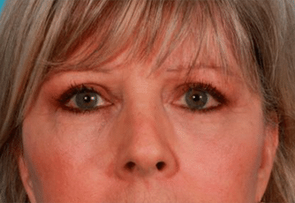 Eyelid Surgery Scotland After