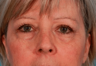 Eyelid Surgery Scotland Before