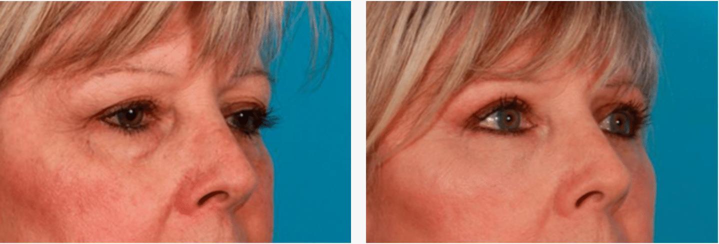 Eyelid Surgery Scotland