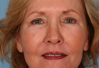 Facelift Surgery Glasgow After