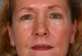 Facelift Surgery Glasgow Before