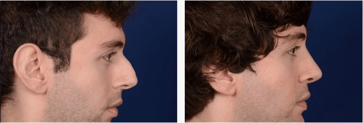 Nose Reshaping Edinburgh