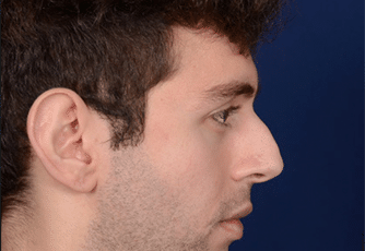 Nose Surgery Glasgow Before