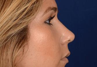 Nose Surgery Scotland After