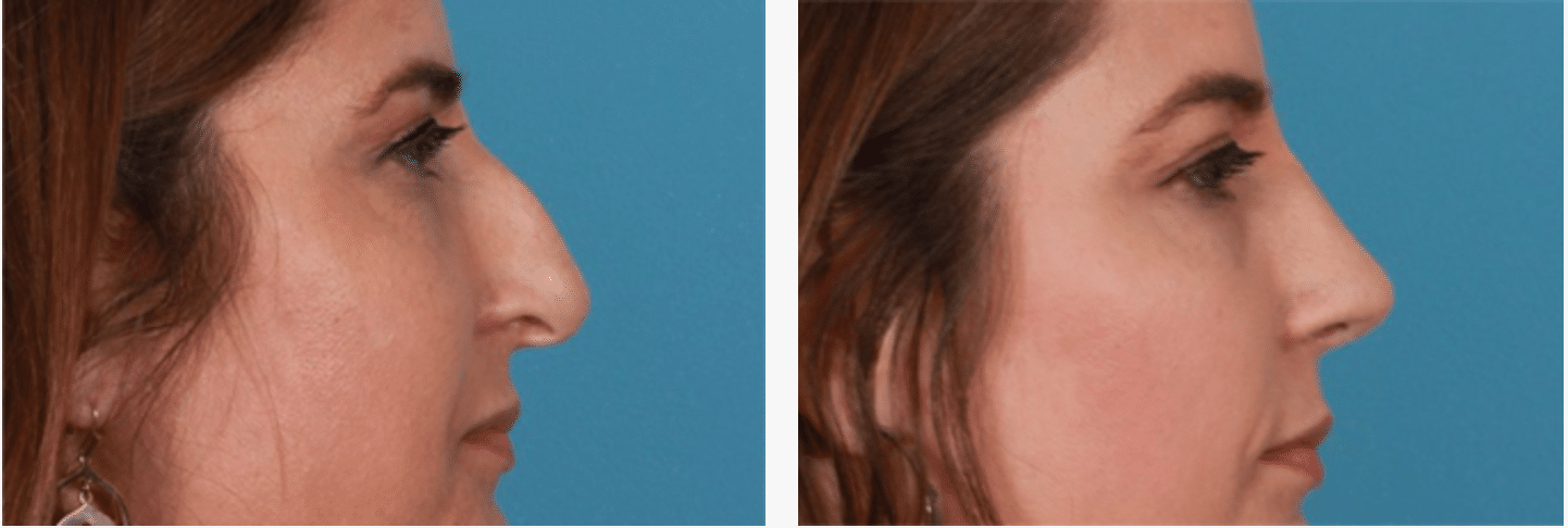 Rhinoplasty Edinburgh